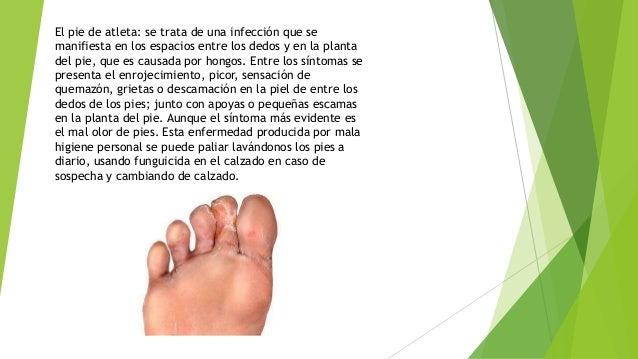 El pie de atleta: se trata de una infección que se manifiesta en los espacios entre los dedos y en la planta del pie, que ...