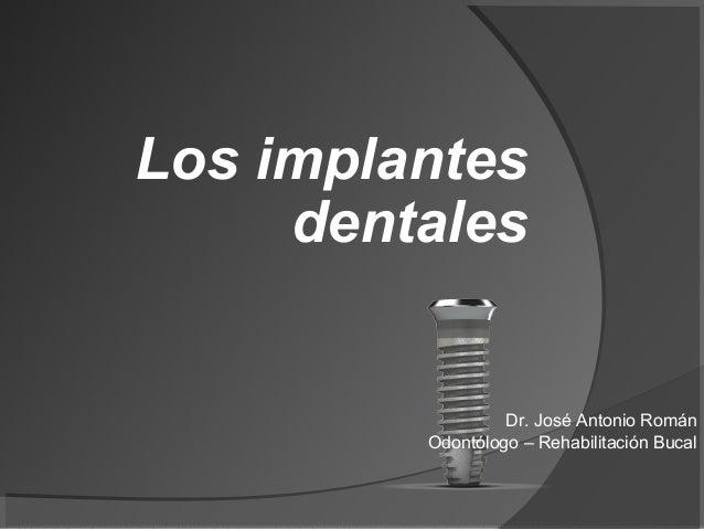 Los implantes     dentales                  Dr. José Antonio Román         Odontólogo – Rehabilitación Bucal