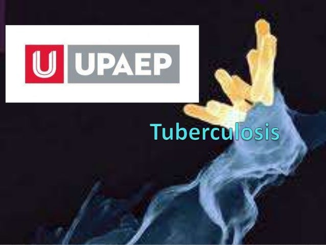 Tuberculosis La tuberculosis es una enfermedad infecciosa que suele afectar a los pulmones y es causada por una bacteria ...