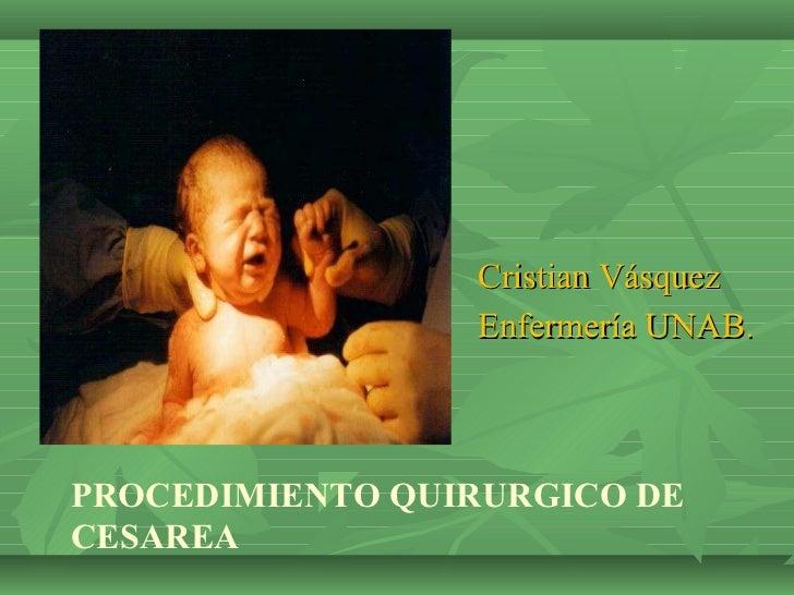 Cristian Vásquez                 Enfermería UNAB.PROCEDIMIENTO QUIRURGICO DECESAREA