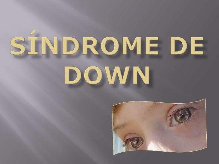 Síndrome de down<br />