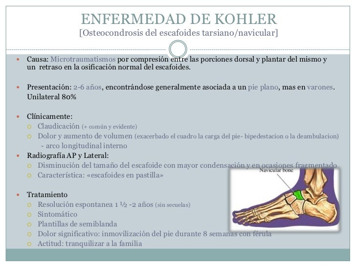 La osteocondrosis en la parte lumbar del ejercicio