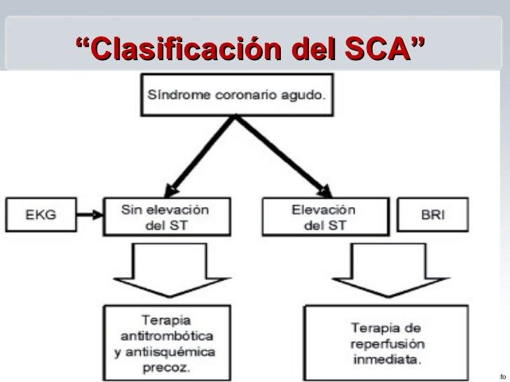 Sindrome Coronario Agu...