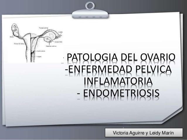 Presentacion ovario