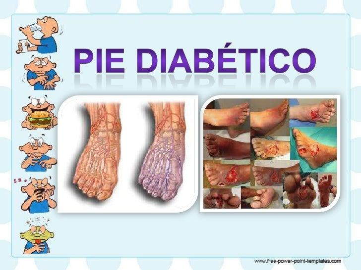Pie diabético• El trastorno de los pies de los diabéticos  es provocado por la enfermedad de las    arterias periféricas q...