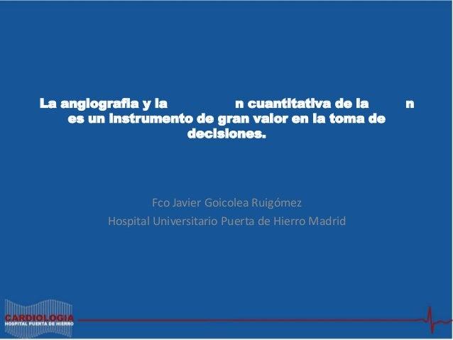 Presentación Dr Javier Goicolea en TEAM 2013 : La angiografía y la valoración cuantitativa de la lesión es un instrumento de gran valor en la toma de decisiones