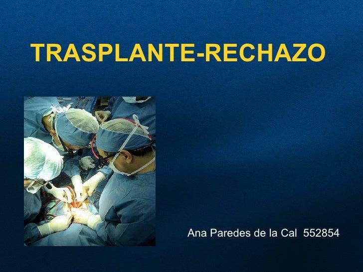 Transplante. Rechazo