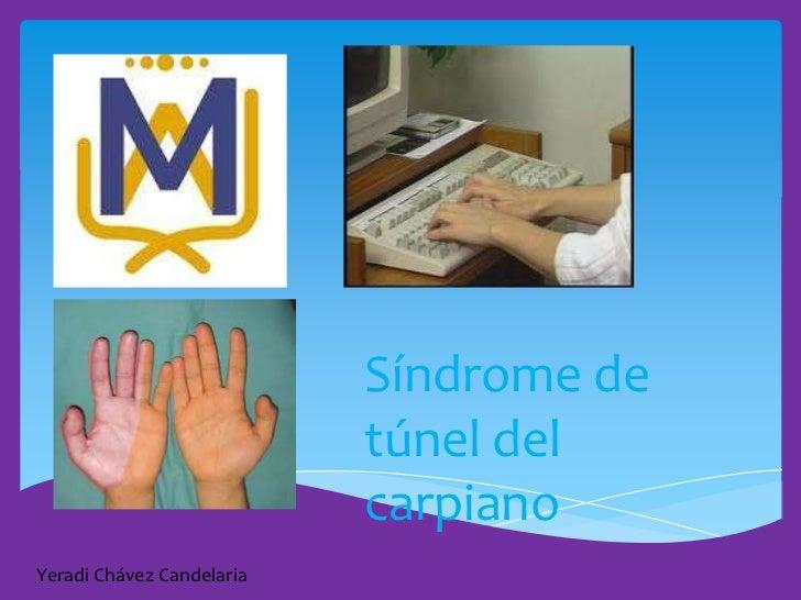 Síndrome de                           túnel del                           carpianoYeradi Chávez Candelaria