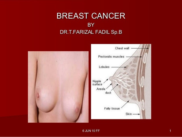 6 JUN 10 FF6 JUN 10 FF 11BREAST CANCERBREAST CANCERBYBYDR.T.FARIZAL FADIL Sp.BDR.T.FARIZAL FADIL Sp.B