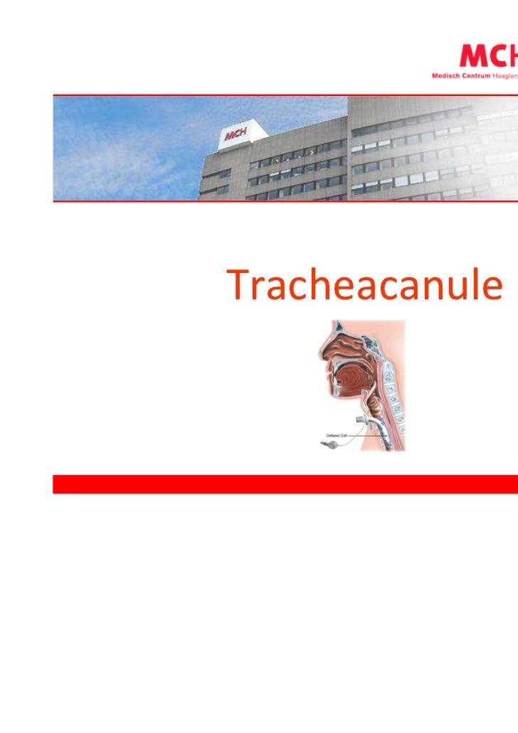Tracheacanule
