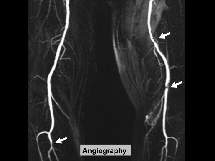 angiography 21 ...
