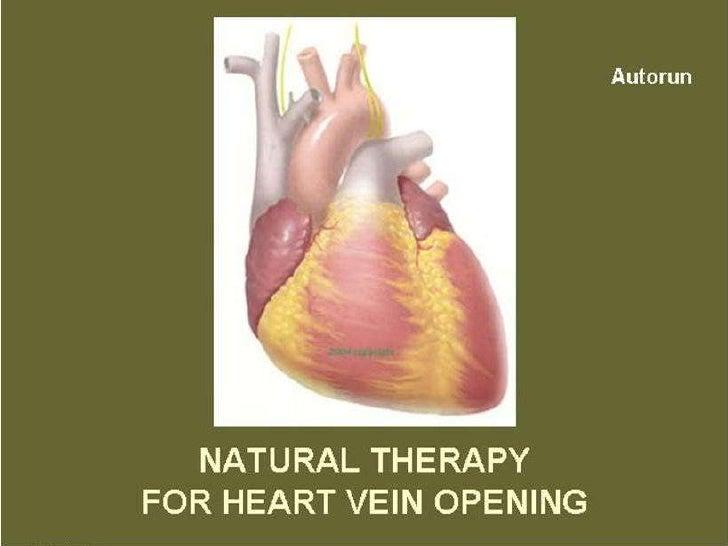 Heart Block Vein Opening