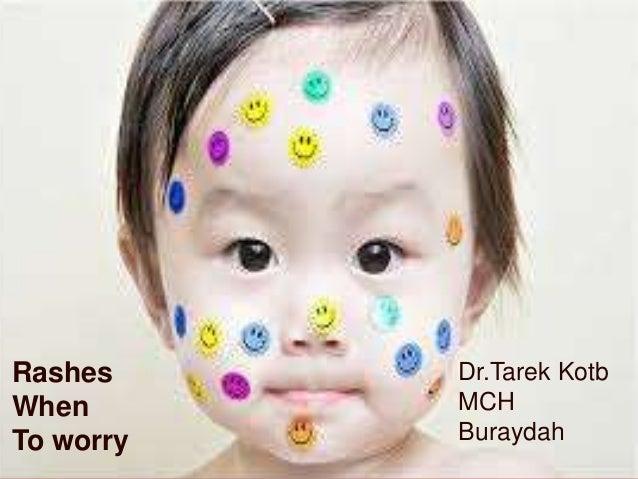 Rashes when to worry-----------? D. TAREK SAYED pediatric departement MCH Buraydah  Rashes When To worry  Dr.Tarek Kotb MC...