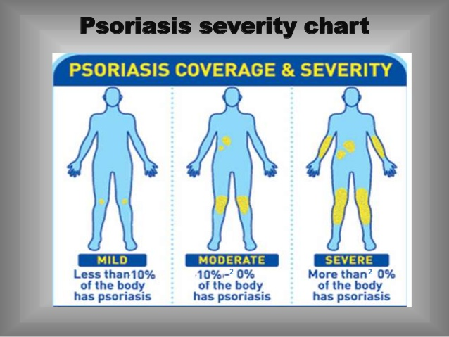 Psoriasis (Moderate to Severe) 3
