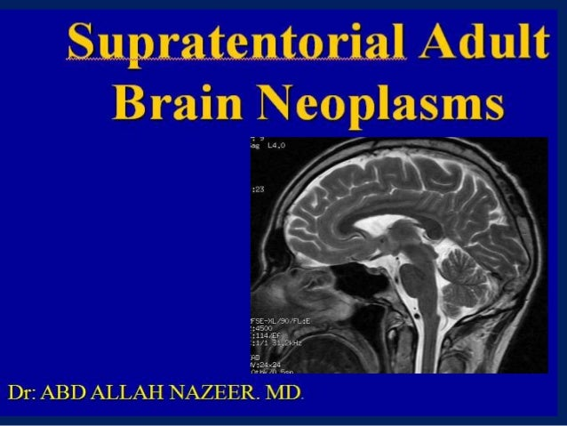 Presentation1.pptx, supratentorial brain tumour