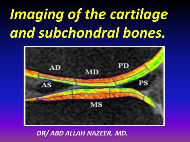 Imaging of the cartilage and subchondral bones. DR/ ABD ALLAH NAZEER. MD.