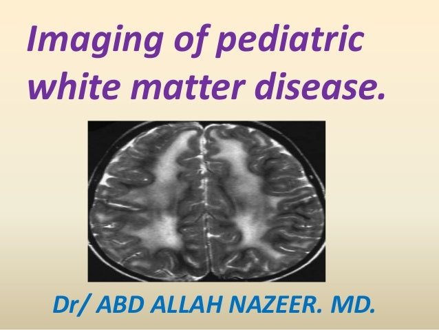 Presentation1.pptx white matter disorder in pediatric
