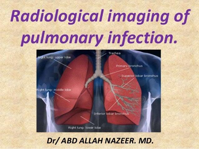 Radiological imaging of pulmonary infection. Dr/ ABD ALLAH NAZEER. MD.