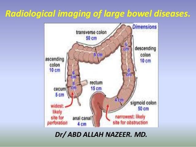 Dr/ ABD ALLAH NAZEER. MD. Radiological imaging of large bowel diseases.
