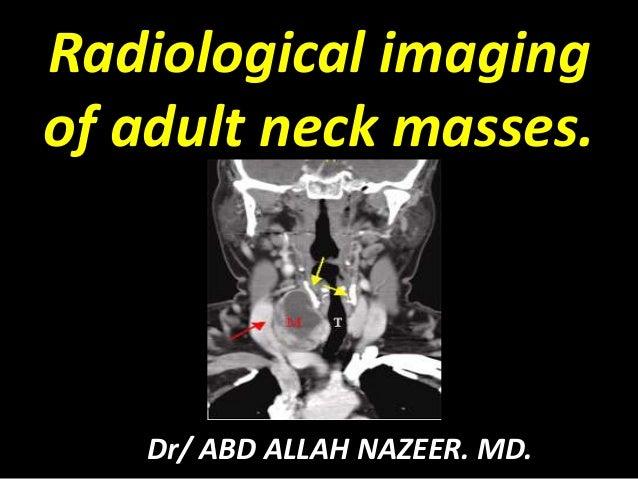 Radiological imaging of adult neck masses. Dr/ ABD ALLAH NAZEER. MD.