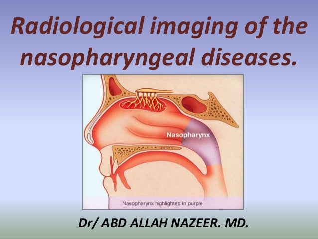 Presentation1.pptx, radiological imaging of the nasopharyngeal diseases.