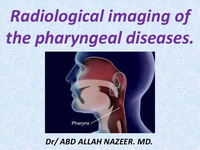Presentation1.pptx, radiological imaging of the pharyngeal diseases
