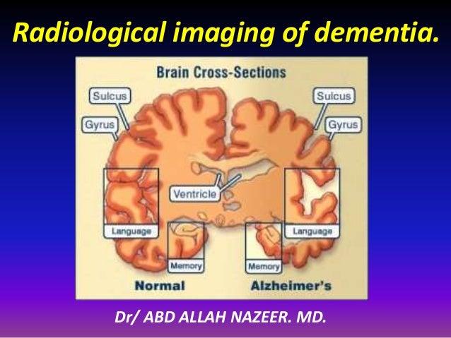 Radiological imaging of dementia.  Dr/ ABD ALLAH NAZEER. MD.
