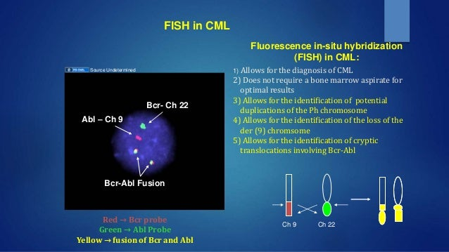 Molecular genetics in mpn for Bcr abl fish