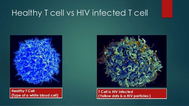 hiv vs aids Hiv is also known as the human immunodeficiency virus aids is also called the acquired immunodeficiency syndrome having hiv is not the same as having aids aids develops after extensive damage to one's immune system by hiv.