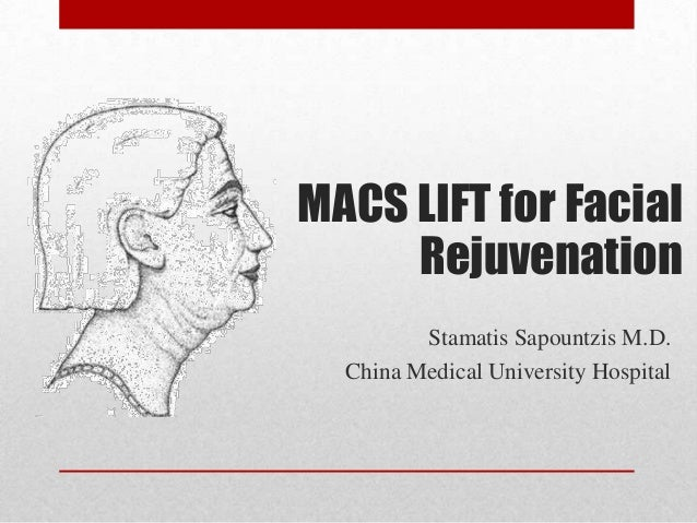 MACS LIFT for Facial     Rejuvenation         Stamatis Sapountzis M.D.  China Medical University Hospital