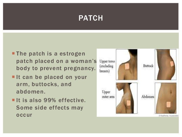 Side effects to the birth control patch