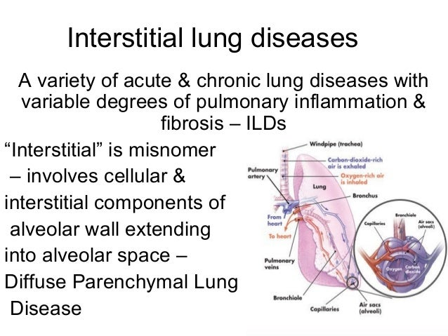 Diffuse lung diseases in cigarette smokers dating 3