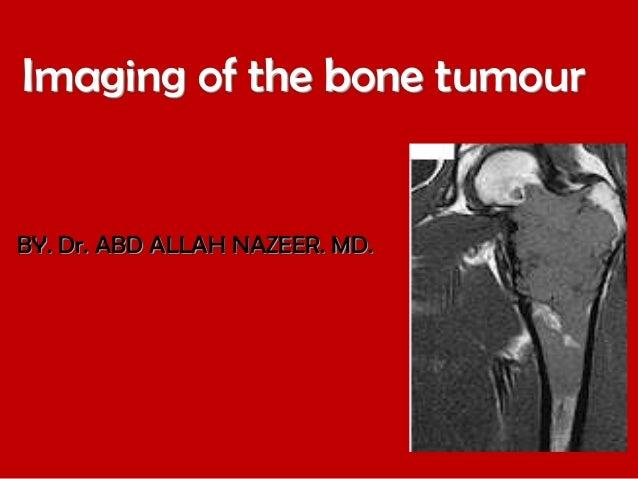 Imaging of the bone tumour  BY. Dr. ABD ALLAH NAZEER. MD.
