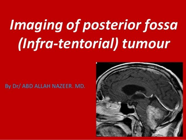 Imaging of posterior fossa (Infra-tentorial) tumour By Dr/ ABD ALLAH NAZEER. MD.