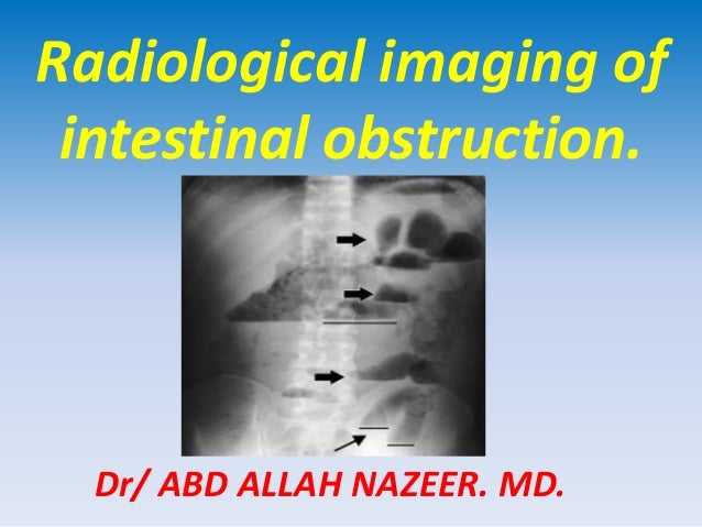 Presentation2.pptx. radilogical imaging of intestinal obstruction.