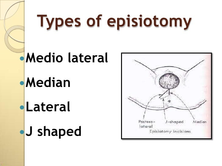 What Is an Episiotomy
