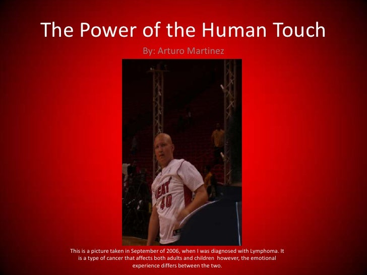 The Power of the Human Touch <br />By: Arturo Martinez<br />This is a picture taken in September of 2006, when I was diagn...
