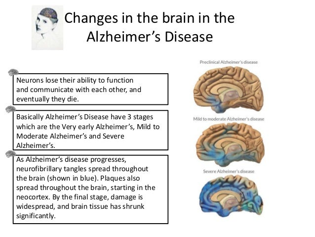 the different stages of alzheimers disease Alzheimer's disease (ad) is a brain disease that slowly destroys brain cells as of now, there is no cure for alzheimer's disease with time, the different symptoms.