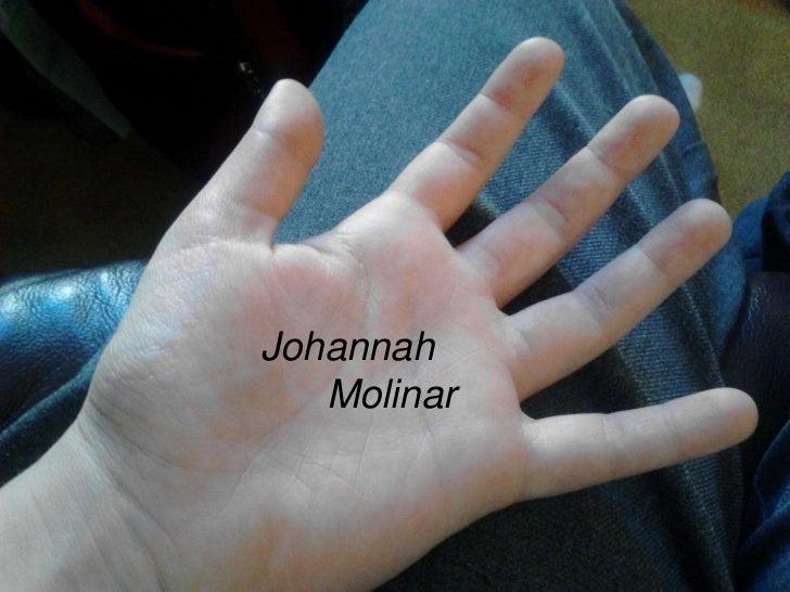 Johannah   Molinar