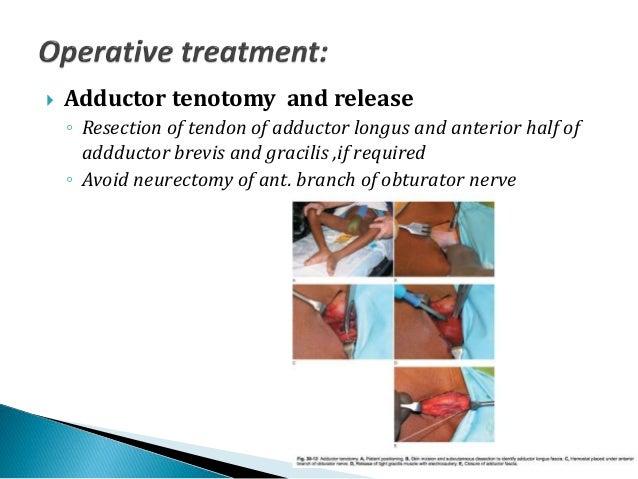 Presentation of cerebral palsy