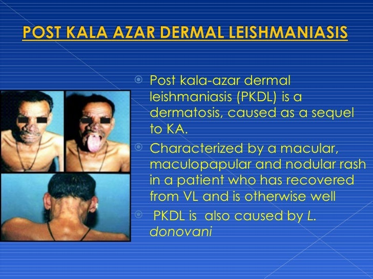 Post Kala Azar Dermal Leishmaniasis