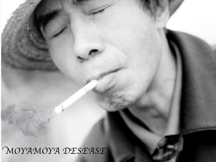 MOYAMOYA DESEASE