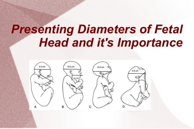 Presenting Diameters of Fetal Head and it's Importance