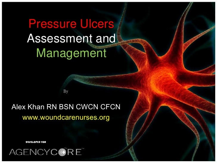 Pressure ulcer assessment and management