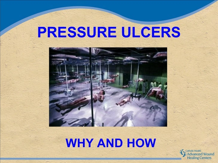 PRESSURE ULCERS  WHY AND HOW