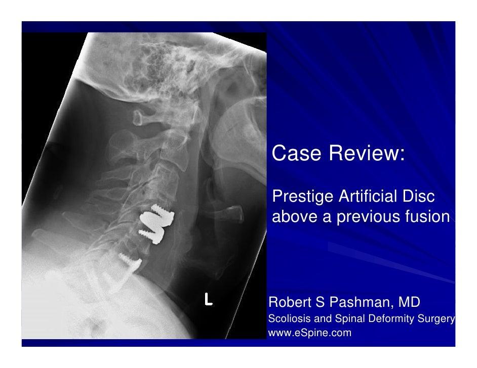 Case Review:Prestige Artificial Discabove a previous fusionRobert S Pashman, MDScoliosis and Spinal Deformity Surgerywww.e...
