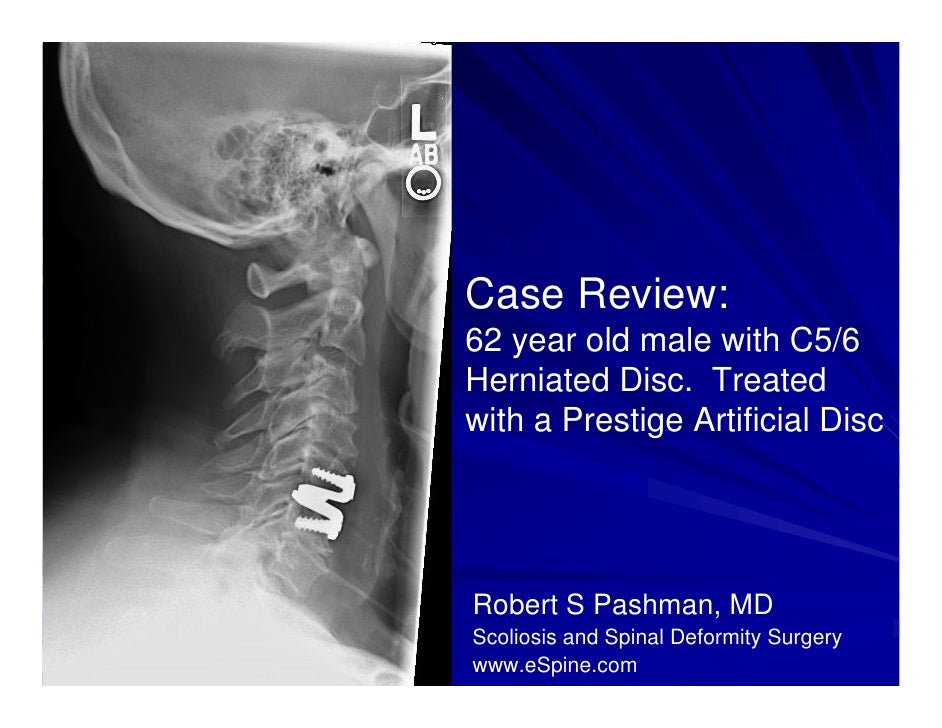 Case Review #6: 62 year old male presented with C5/6 Disc Herniation