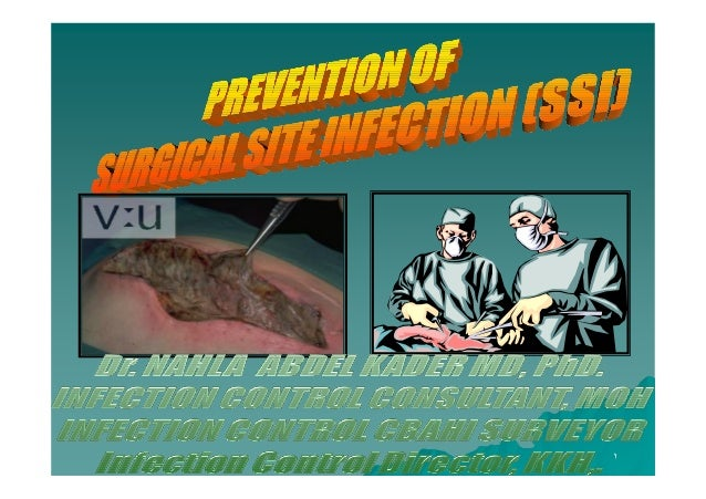 Prevention of Surgical Site Infection- SSI [compatibility mode]