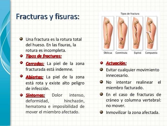 Los precios de los ungüentos a los dolores en la espalda