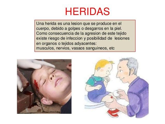 HERIDAS Una herida es una lesion que se produce en el cuerpo, debido a golpes o desgarros en la piel. Como consecuencia de...